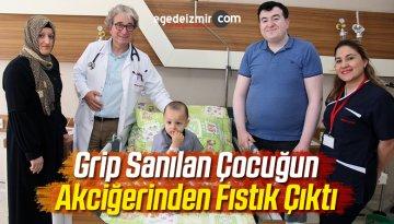 Grip Sanılan Çocuğun Akciğerinden Fıstık Çıktı