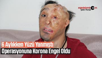 6 aylıkken yüzü yanmıştı, operasyonuna korona engel oldu