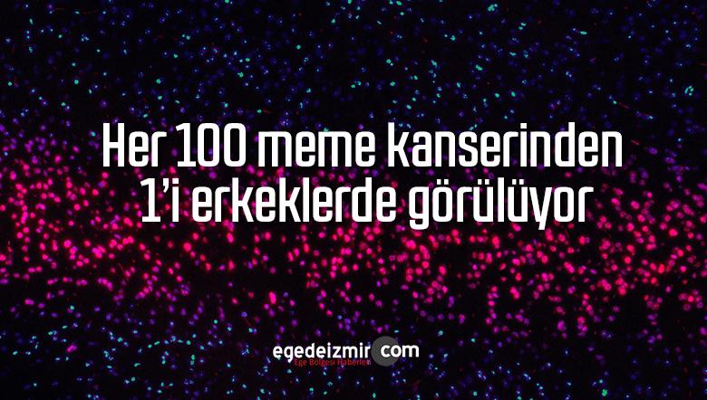 Her 100 meme kanserinden 1'i erkeklerde görülüyor