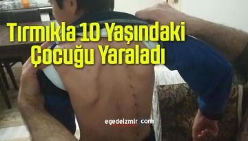 Tırmıkla 10 Yaşındaki Çocuğu Yaraladı